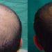 Medici specializzati ne trapianto capelli a Roma