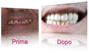 caso clinico implantologia dentale