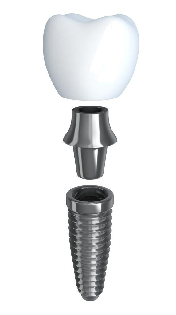 impianti dentali titanio